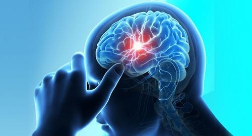 Brain-haemorrhage.jpg